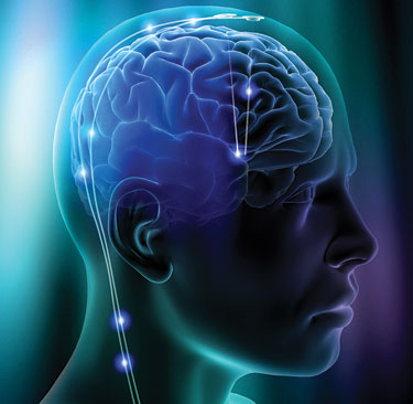 New MIND Diet May Reduce the Risk of Alzheimer's