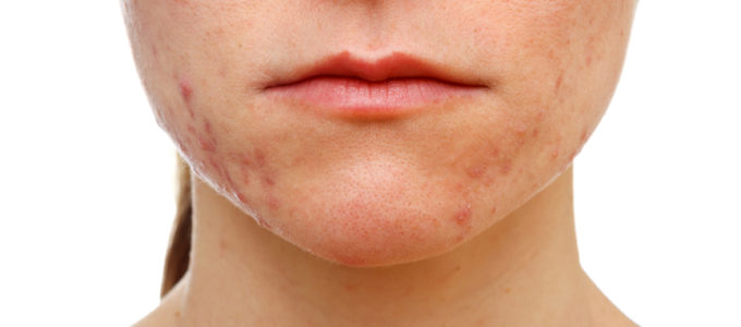 adult-onset acne