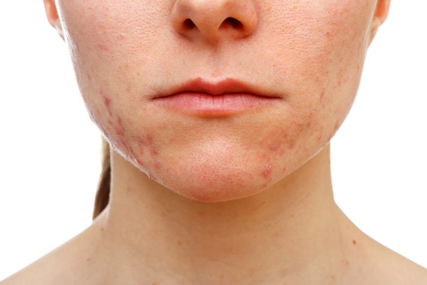 Adult Acne - Treatment Options & Support - Acne.org